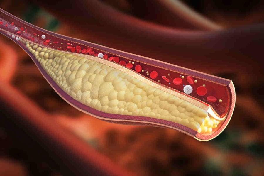 12 alimenti per pulire le arterie